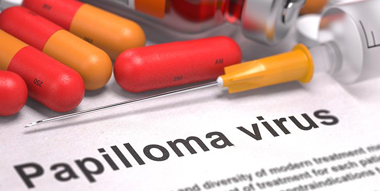 papilloma virus brufoli