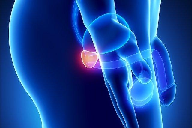 cancer de prostata pode matar que es papiloma humana