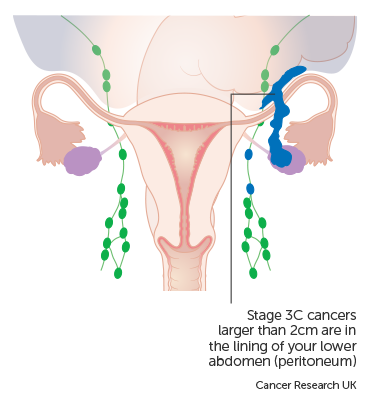 cancer ovarian dupa histerectomie hpv virus and ovarian cancer