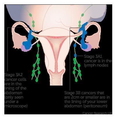 peritoneal cancer treatments)