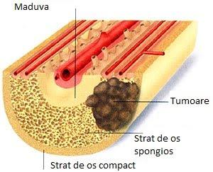 cancer maduva simptome