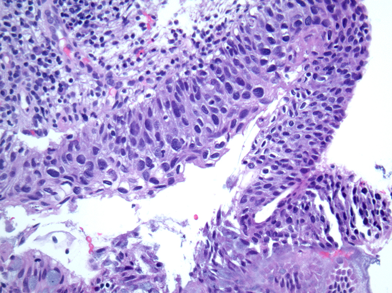 hpv associated oropharyngeal cancer pathology outlines