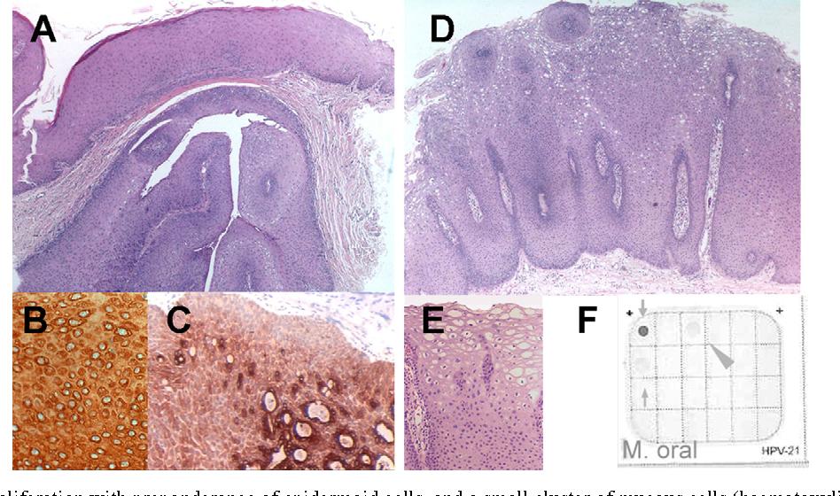 papillomas of salivary gland