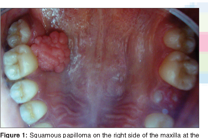 red squamous papilloma)