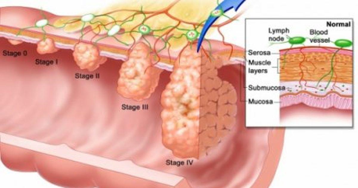 cancerul de colon se ia)