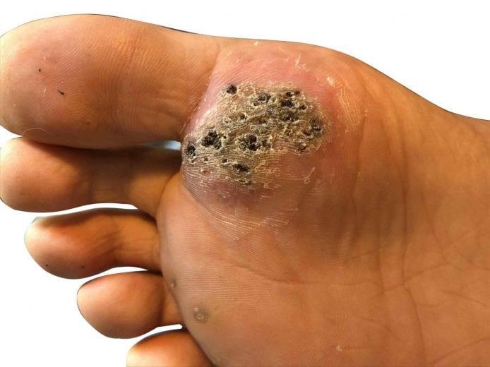 wart on foot palm nematodul are simetrie cu două fețe