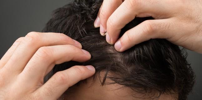 paraziți în tratamentul scalpului uman)