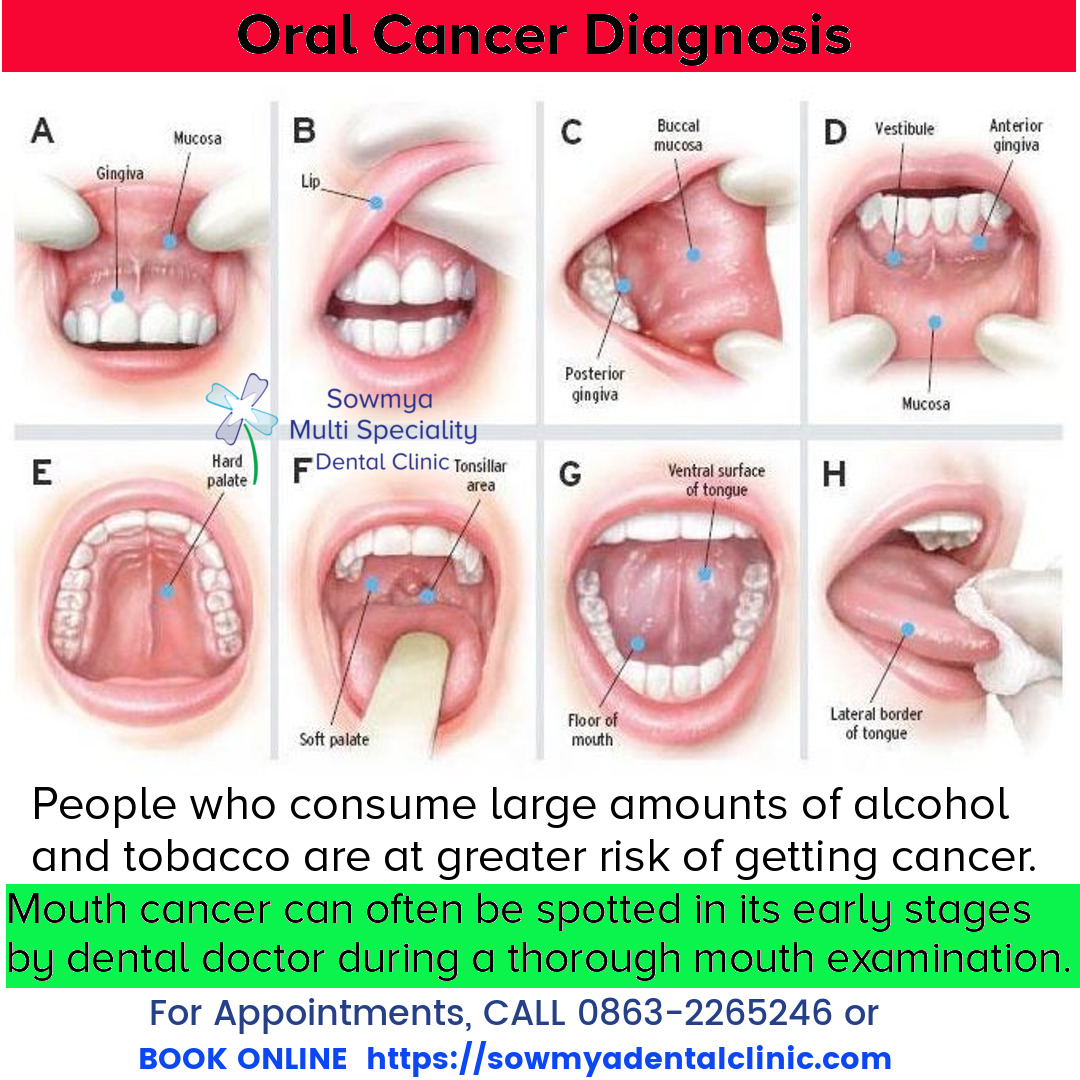 Hpv throat cancer test.