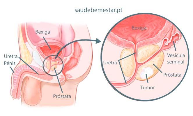 Cum face ultrasunete de prostata un litru de apa Cancer de prostata ultrasonido