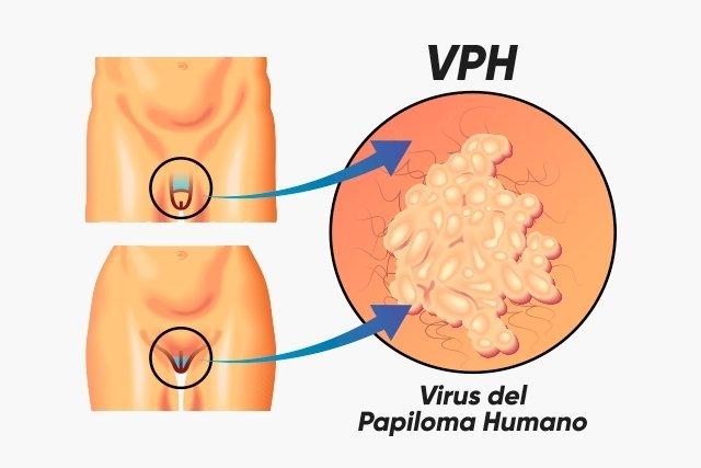 Como aparece el virus del papiloma humano en hombres