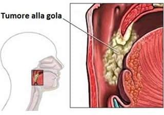 papilloma virus sintomi iniziali)
