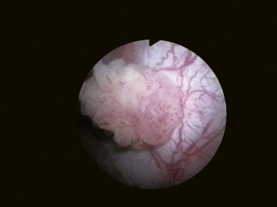 Papilloma in bladder cancer - divastudio.ro