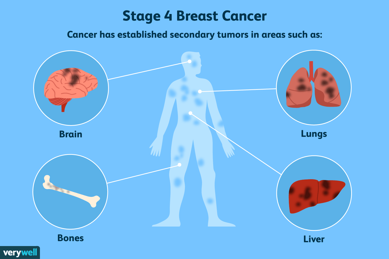 cancer aggressive radiation