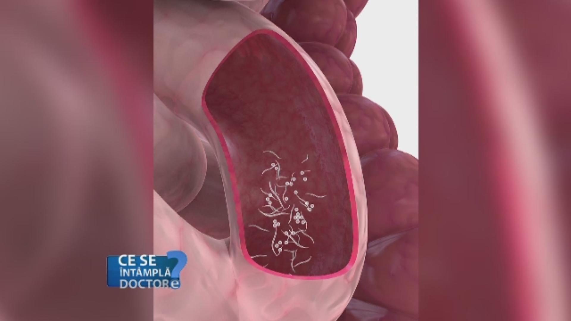 cum să scot viermi de copii dacă papilomatosis bovina tesis