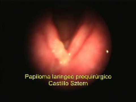 Que es el virus del papiloma humano.