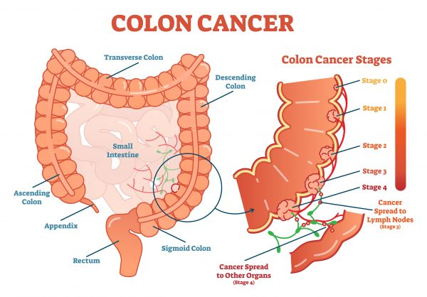 colon cancer abdominal bloating)