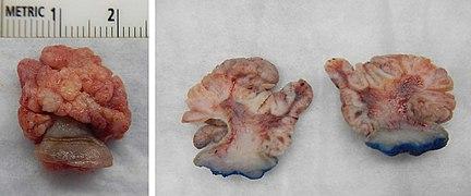 squamous papilloma cheek)