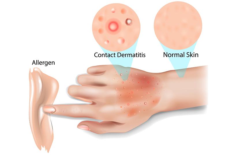 dermatita de contact)