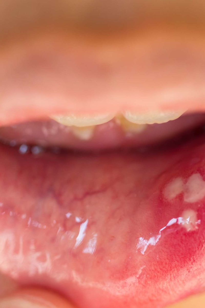 papilloma on tip of tongue)