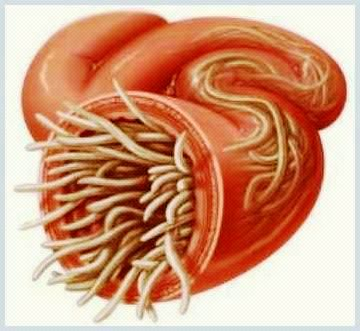 Paraziti intestinali - divastudio.ro