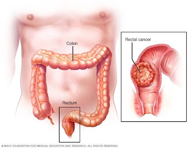 Rectal cancer vs fissure Keighley & Williams' Surgery of the Anus, Rectum and Colon