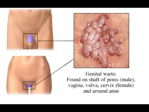 Virusul HPV | Infecția cu HPV - Condylomata acuminata and human genital cancer