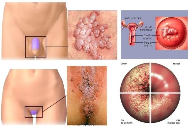 virus del papiloma sintomas y tratamiento)
