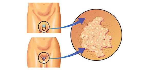 Como detectar virus papiloma en hombres. Câncer de Mama