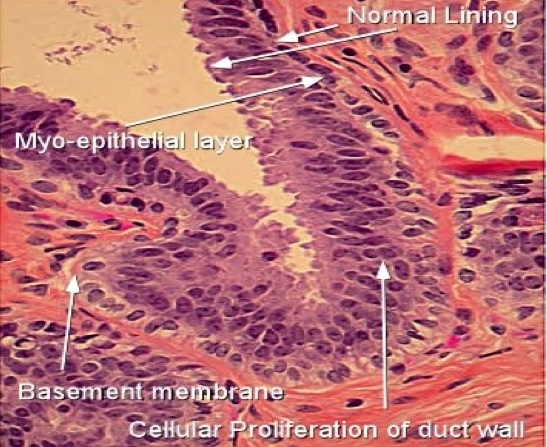 papillomatosis ductal hyperplasia