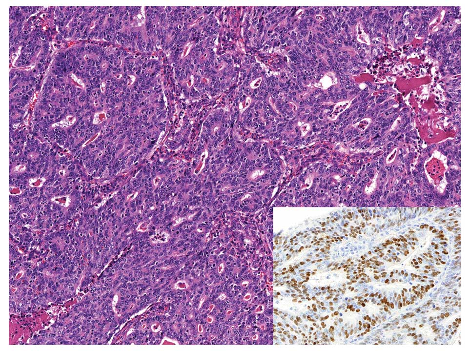 Gastric cancer histopathology. PRIMARY GASTRIC LYMPHOMA IN A PROSPECTIVE STUDY