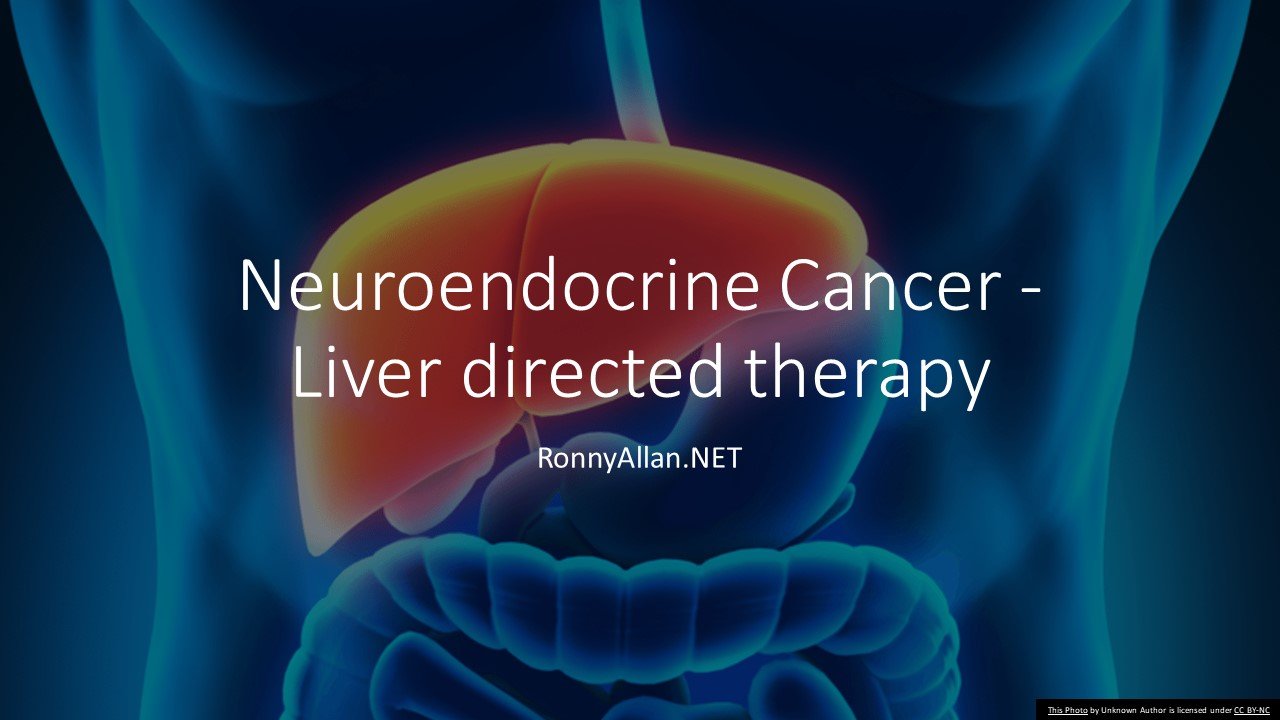 neuroendocrine cancer liver treatment)