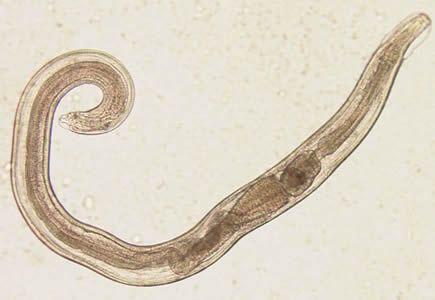 enterobius vermicularis kind)