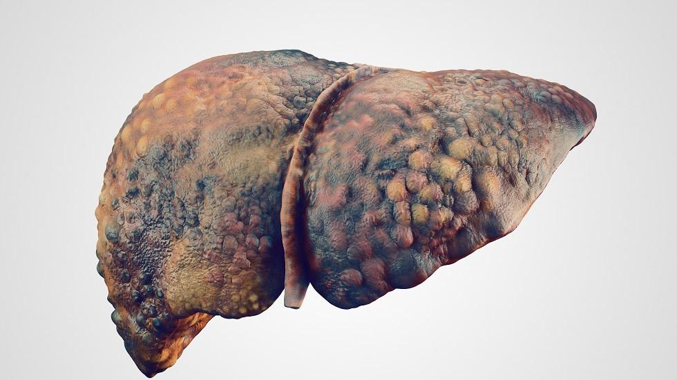 Cum apare cancerul de ficat. Simptomele acestei afecţiuni oncologice   divastudio.ro