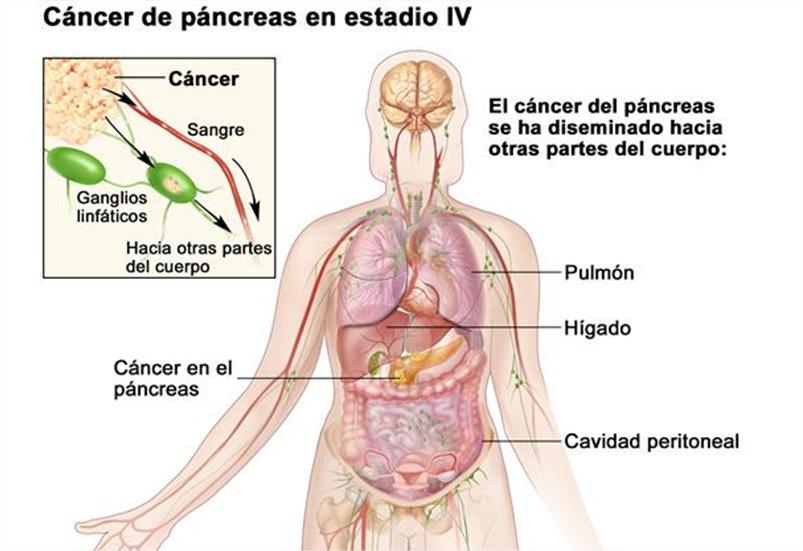 cancer peritoneu tratament