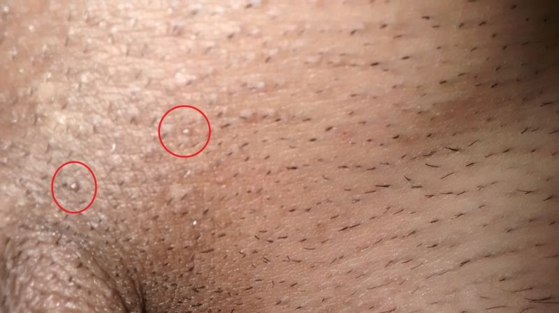 hpv warts does it go away)