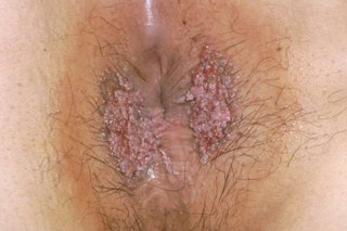 hpv warts that won t go away)