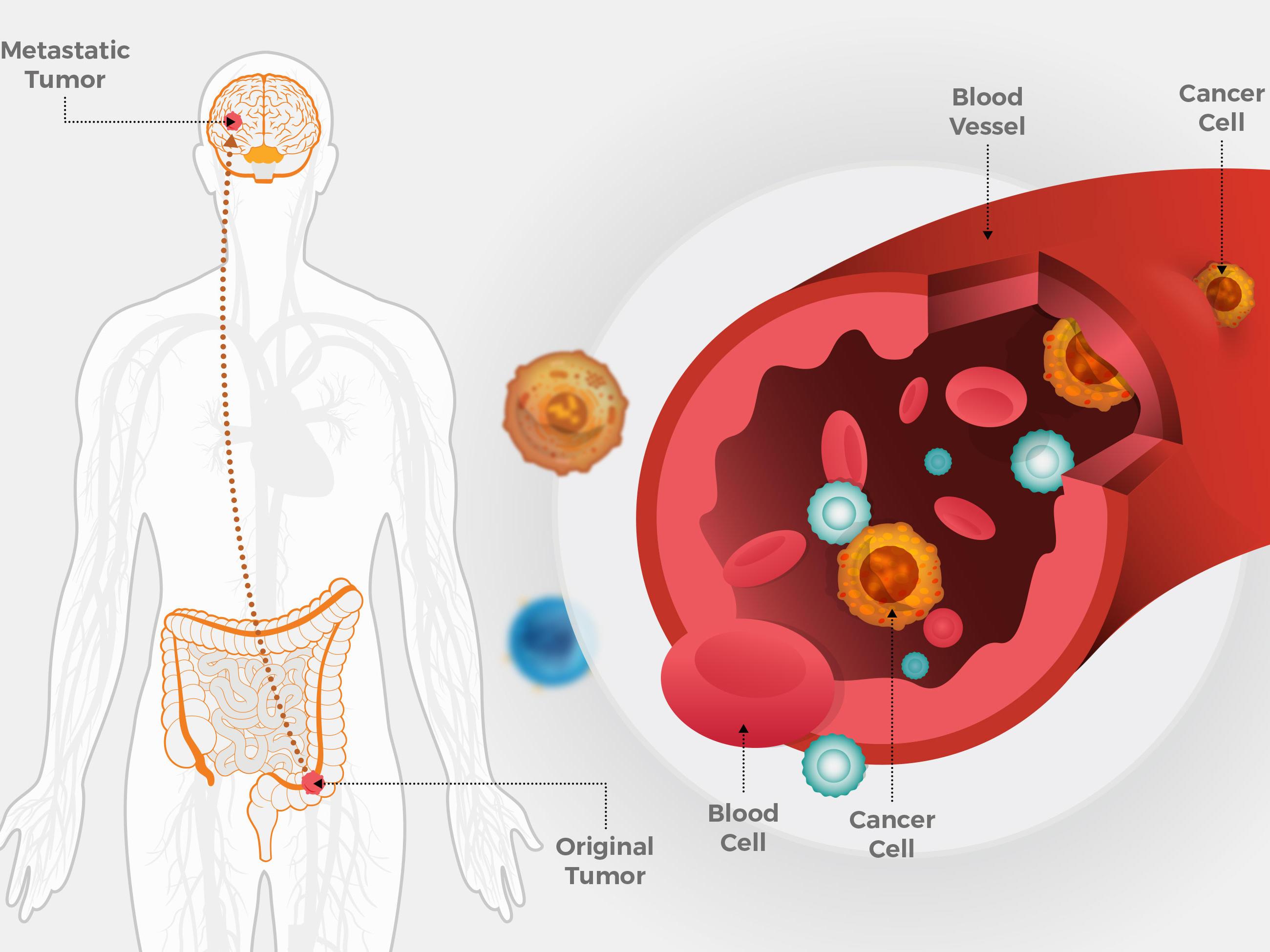 Tipurile de cancer cu cele mai mari șanse de supraviețuire   SanoTeca