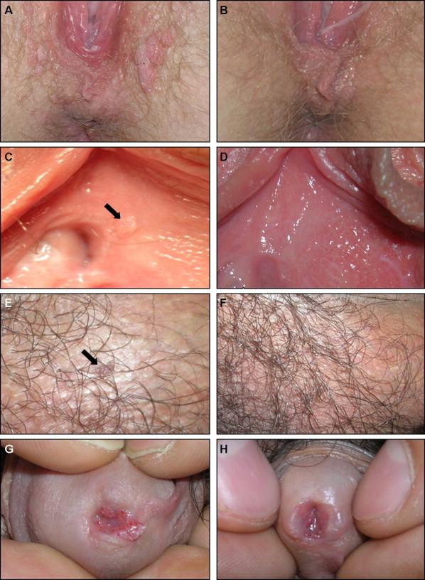 condyloma acuminata genital treatment)