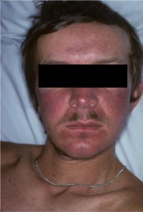 neuroendocrine cancer facial flushing)
