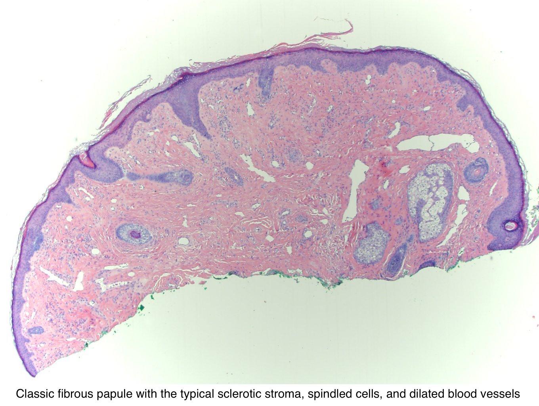 tratamentul asistentei cu viermi pinworm
