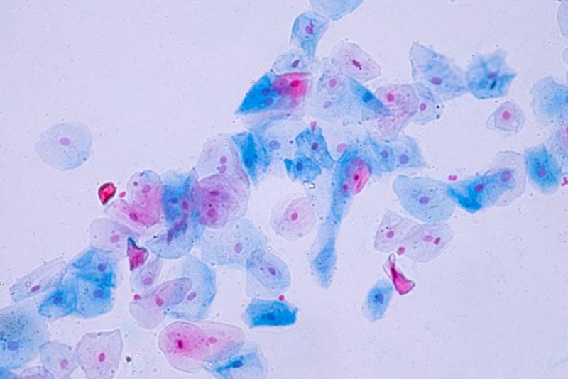 Papilloma virus positivo e pap test positivo.