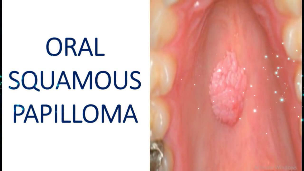 squamous papilloma mouth treatment)