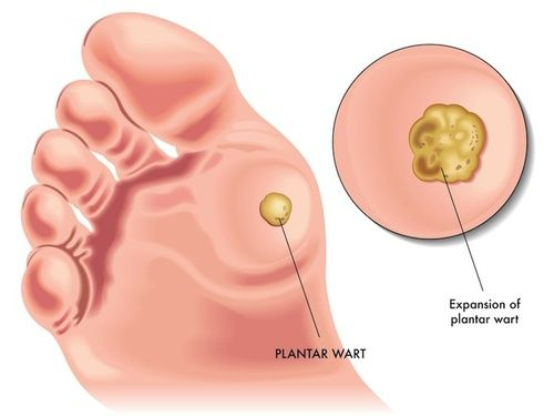 verruche papilloma virus