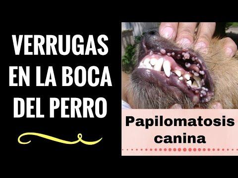 papillomavirus qka eshte)