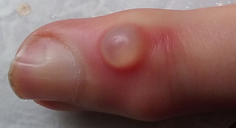 hpv warts between toes)