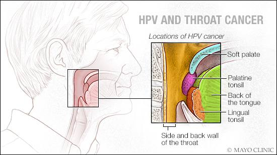 hpv and throat cancer in males