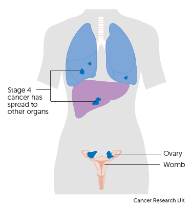 ovarian cancer metastatic prognosis)
