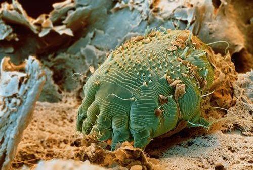 parazitii din organismul uman