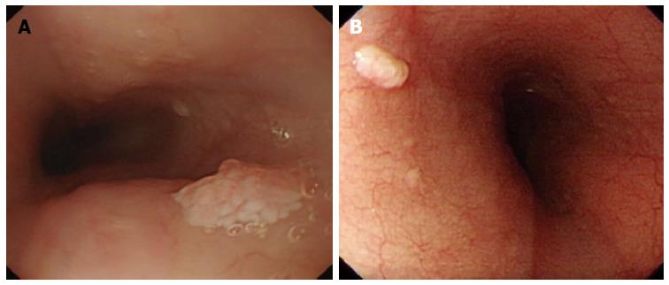 Diagnostic Pathology GI Endoscopic Correlations Squamous papilloma of the esophagus