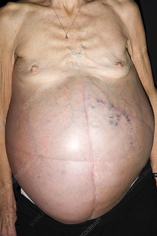 cancer en abdominal)